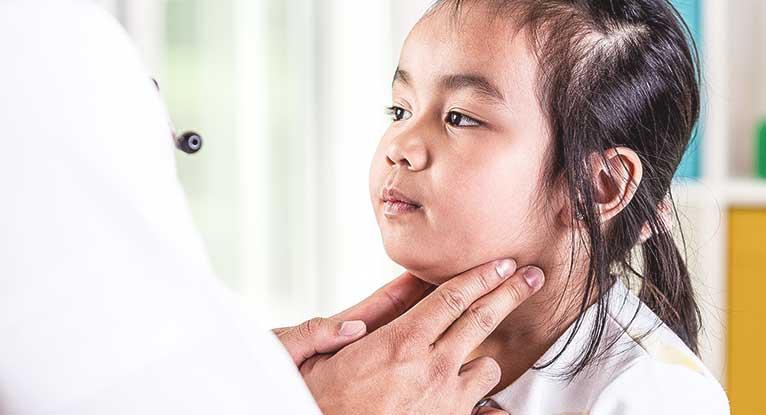 Brote de paperas en Toronto y Canadá: autoridades de salud recomiendan revisar historial de vacunas
